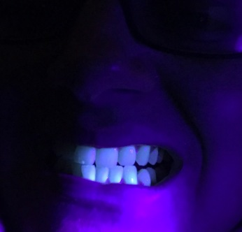 fluorescent teeth