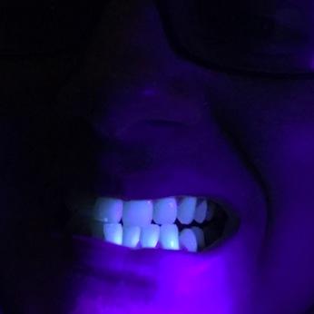 fluorescent teeth